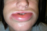 HAE swelling in lip 1 hour prior to taking Ruconest