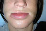 HAE swelling in lip 4 hours post Ruconest treatment