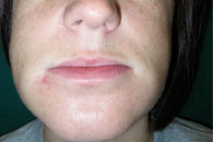 HAE swelling in lip 8 hours post Ruconest treatment
