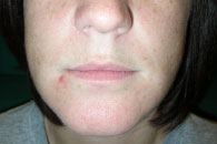 HAE swelling in lip 24 hours post Ruconest treatment